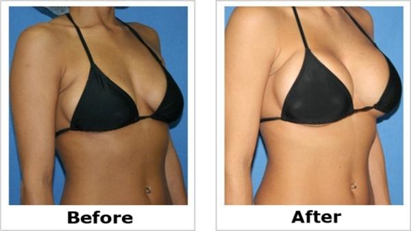 Total Curve Cream - Herbal Breast Enlargement Program-2038